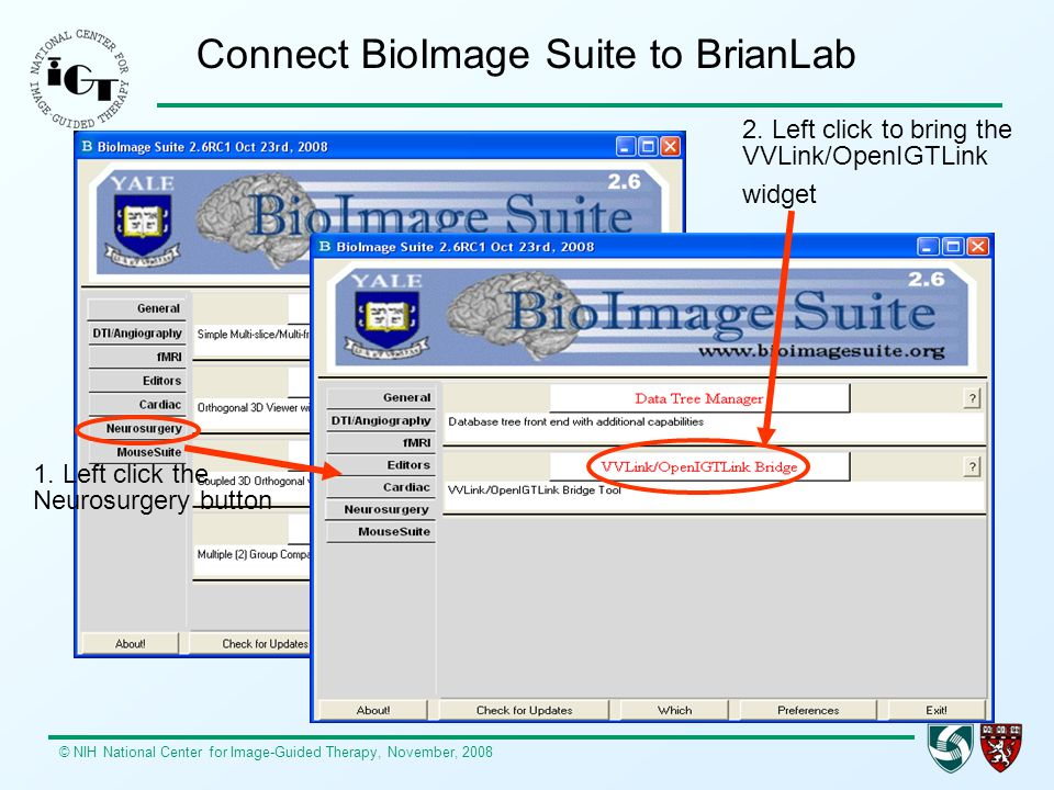 Connect BioImage Suite to BrianLab