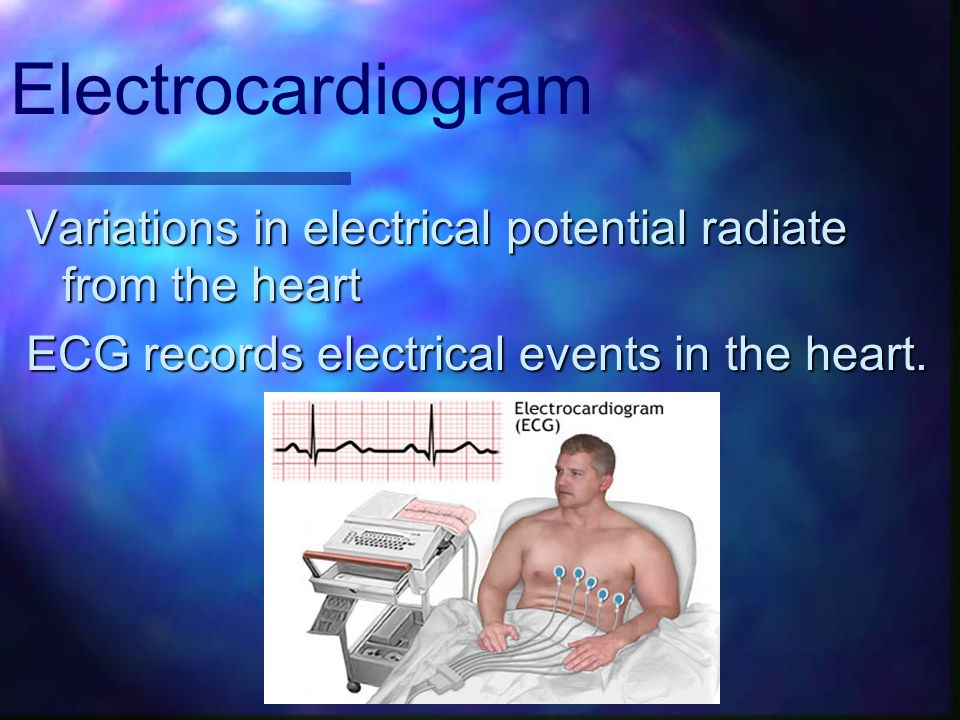 Electrocardiogram Variations in electrical potential radiate from the heart.