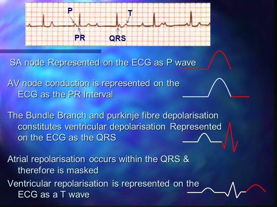 SA node Represented on the ECG as P wave