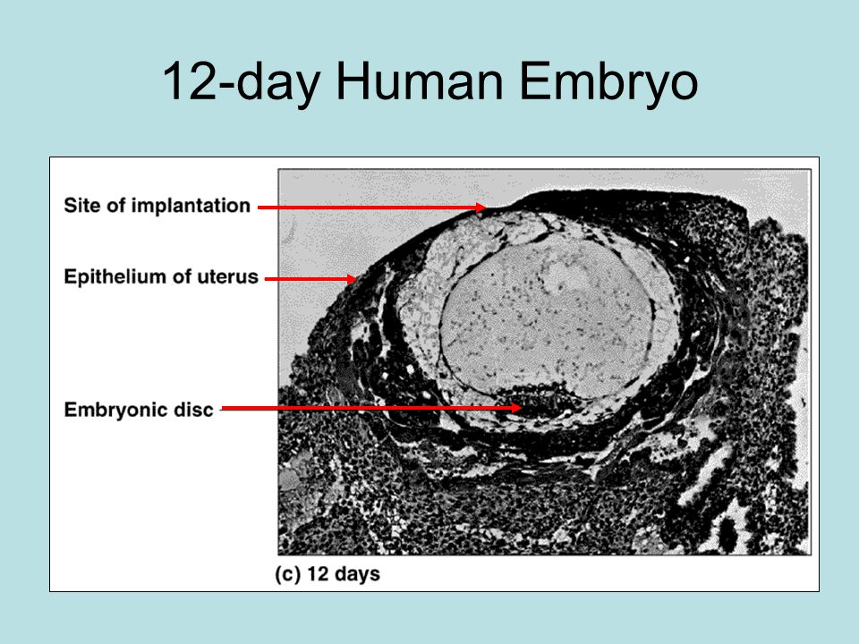 12-day Human Embryo