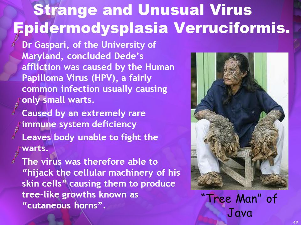 Strange and Unusual Virus Epidermodysplasia Verruciformis.