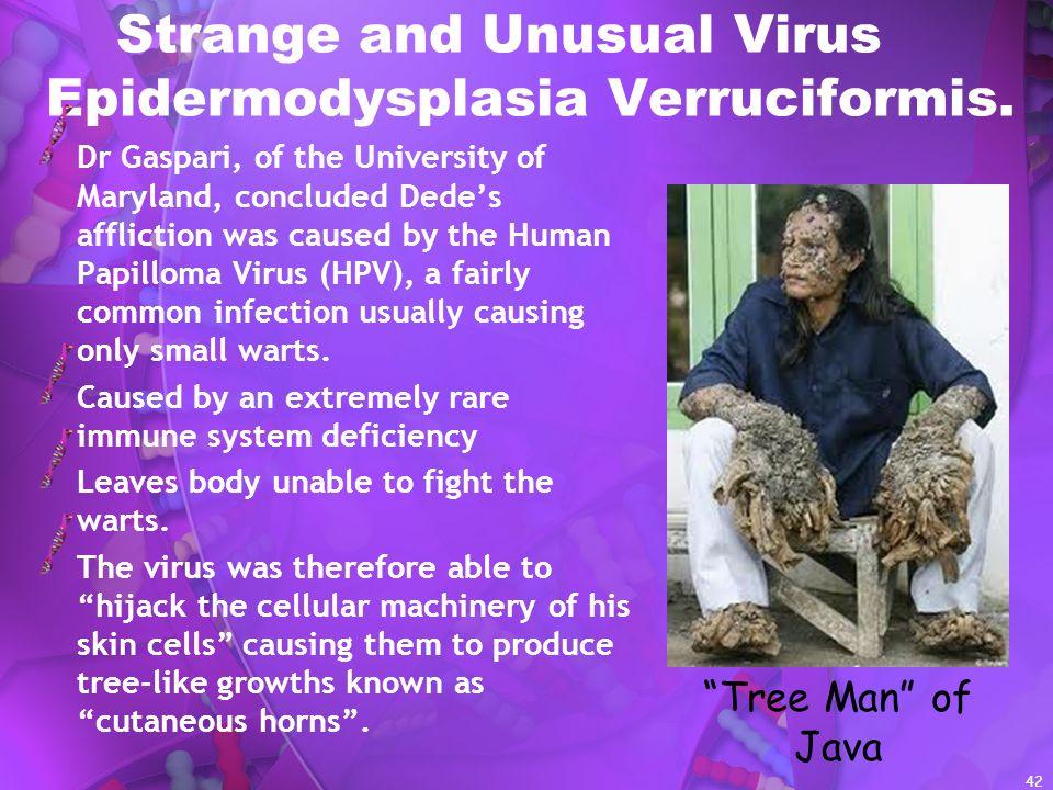 Strange and Unusual Virus Epidermodysplasia Verruciformis.