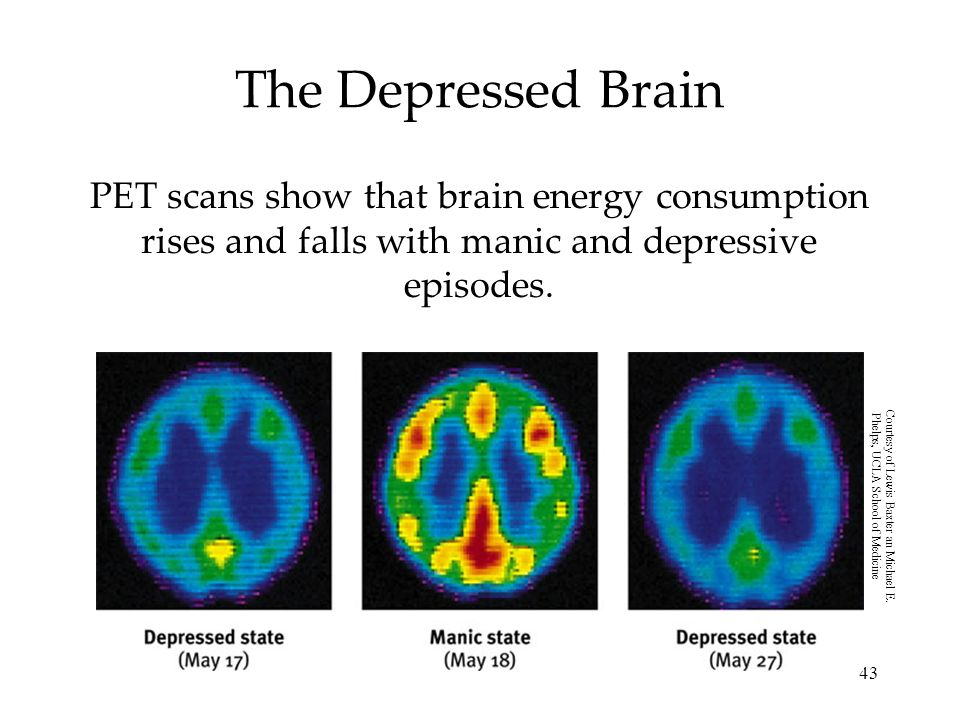 The Depressed Brain PET scans show that brain energy consumption rises and falls with manic and depressive episodes.