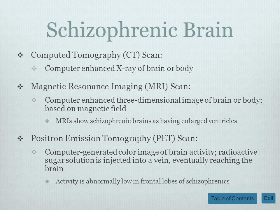 Schizophrenic Brain Computed Tomography (CT) Scan: