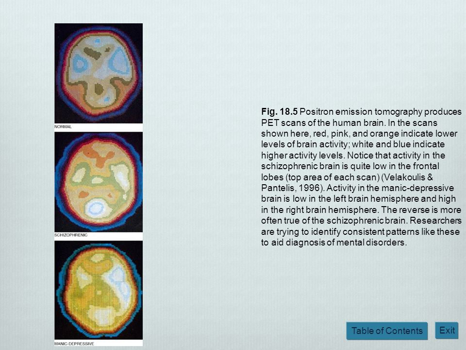Fig. 18.5 Positron emission tomography produces PET scans of the human brain.