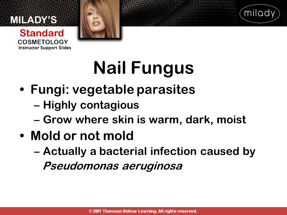 Nail Fungus Fungi: vegetable parasites Mold or not mold