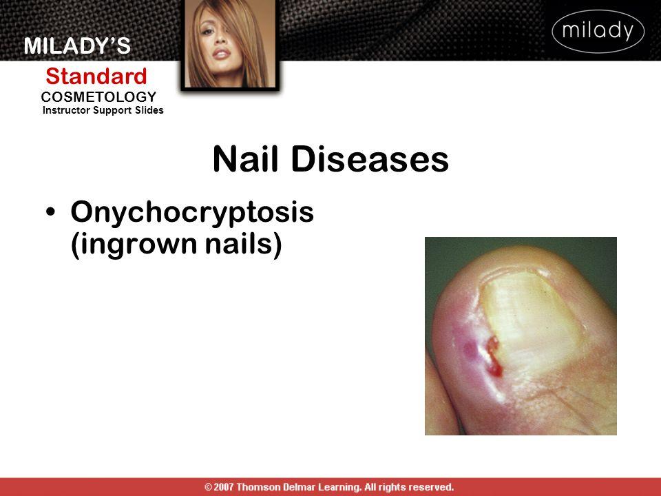 Nail Diseases Onychocryptosis (ingrown nails)