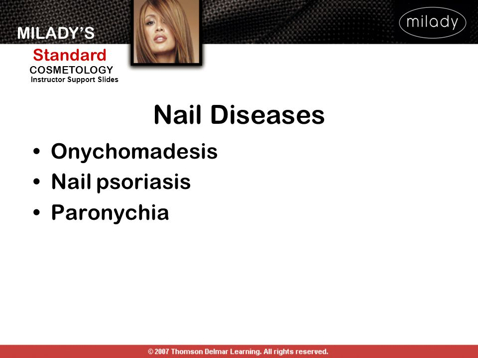 Nail Diseases Onychomadesis Nail psoriasis Paronychia