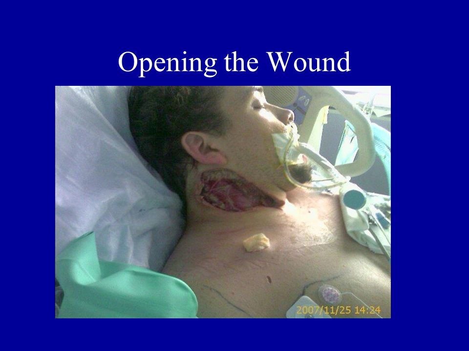 Opening the Wound