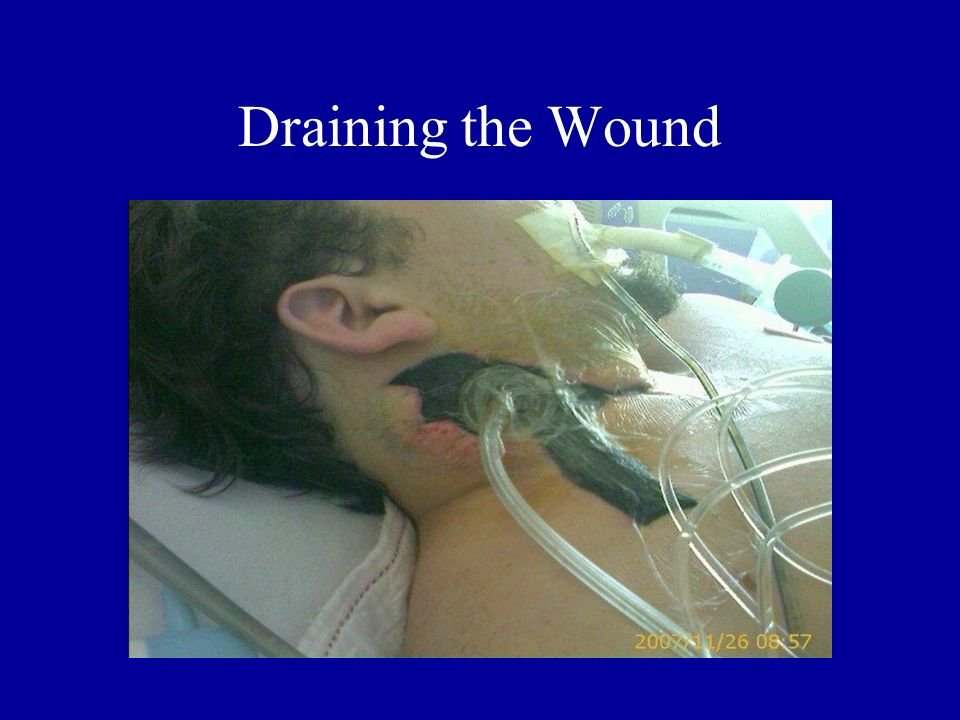 Draining the Wound