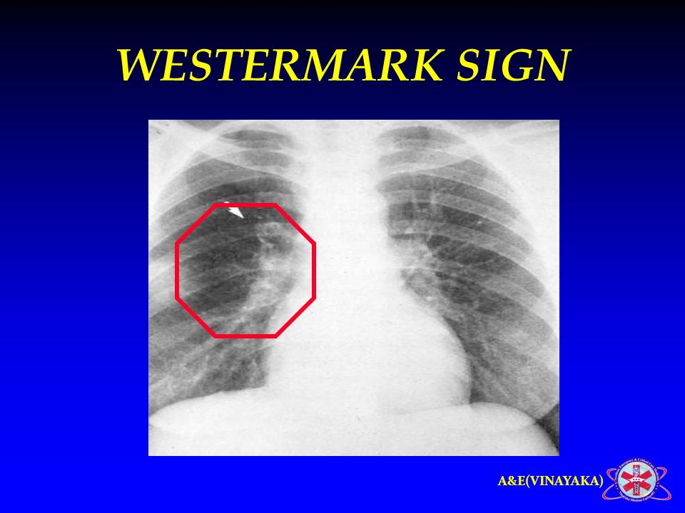 Westermark Sign Chest X Ray Images Diagram Writing
