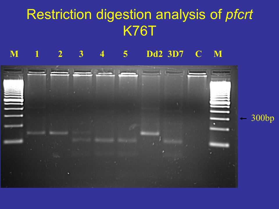 Restriction digestion analysis of pfcrt K76T