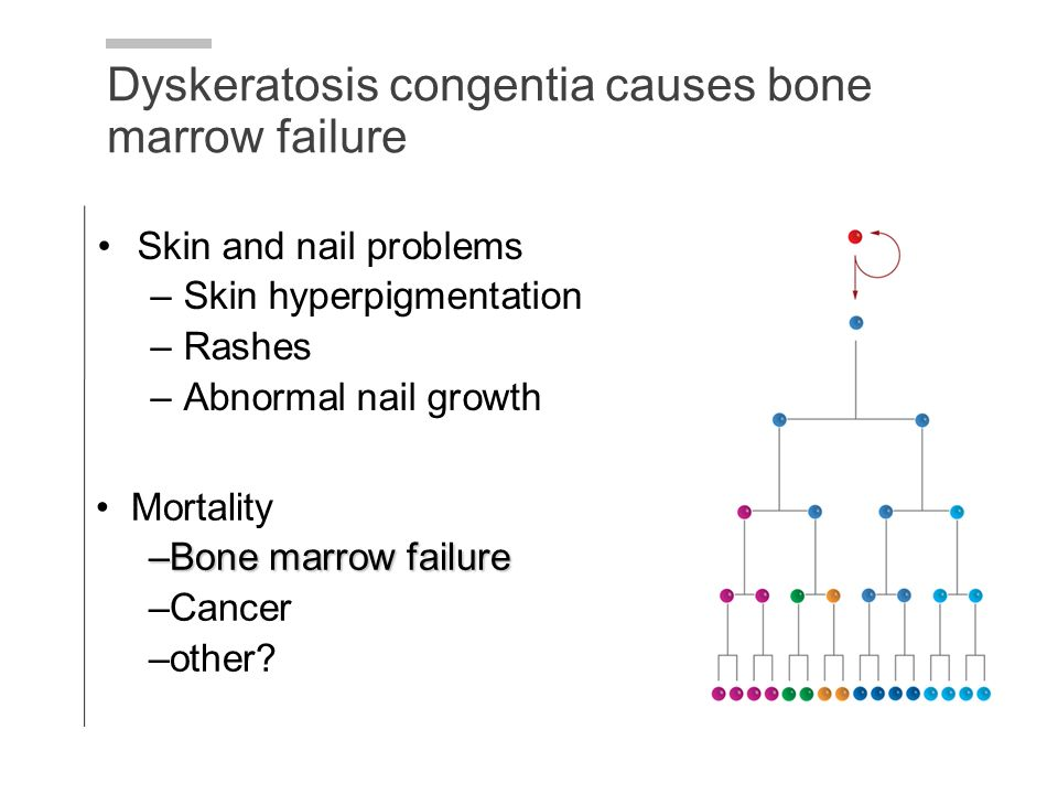 Dyskeratosis congentia causes bone marrow failure