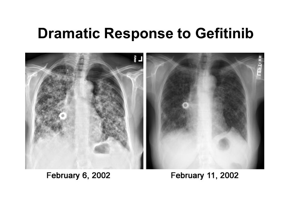 Dramatic Response to Gefitinib