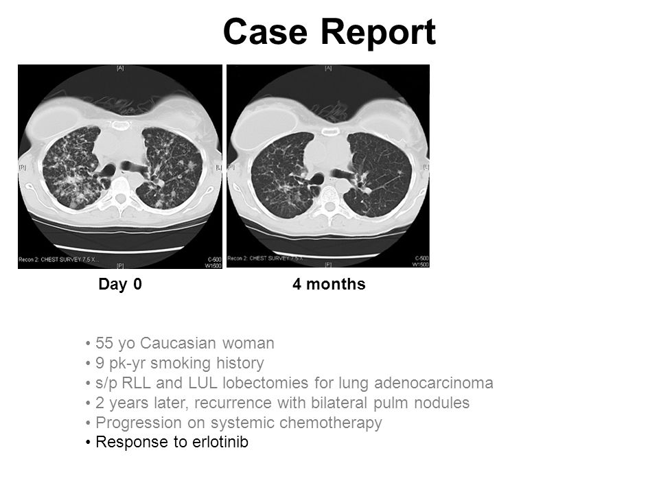 Case Report Day 0 4 months 55 yo Caucasian woman