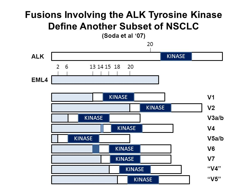 Fusions Involving the ALK Tyrosine Kinase Define Another Subset of NSCLC