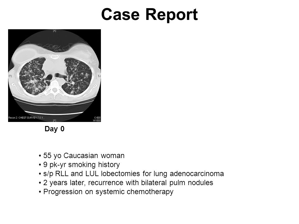 Case Report Day 0 55 yo Caucasian woman 9 pk-yr smoking history