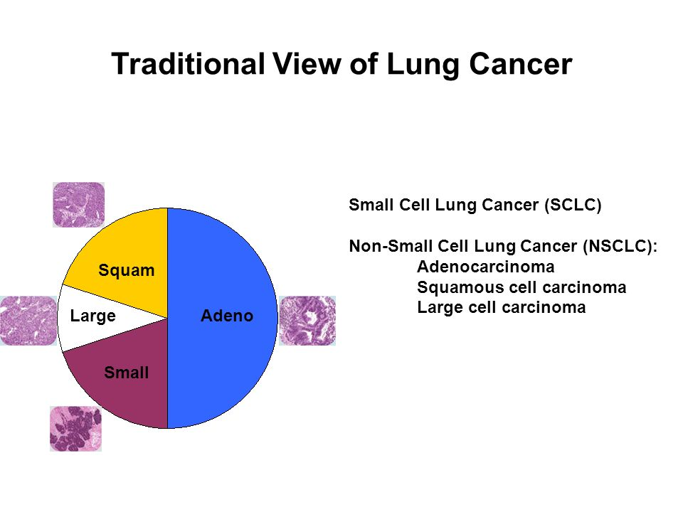 Traditional View of Lung Cancer