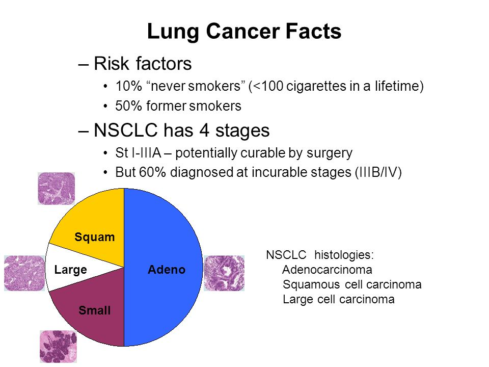 Lung Cancer Facts Risk factors NSCLC has 4 stages