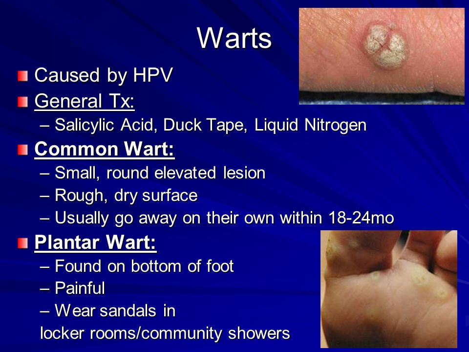 Warts Caused by HPV General Tx: Common Wart: Plantar Wart: