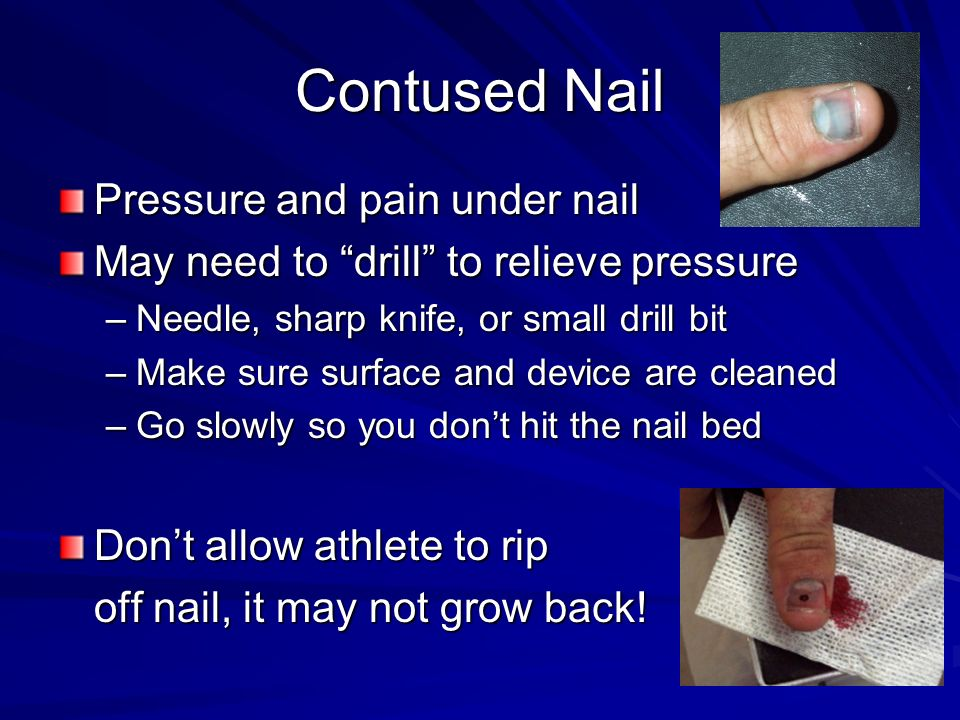 Contused Nail Pressure and pain under nail