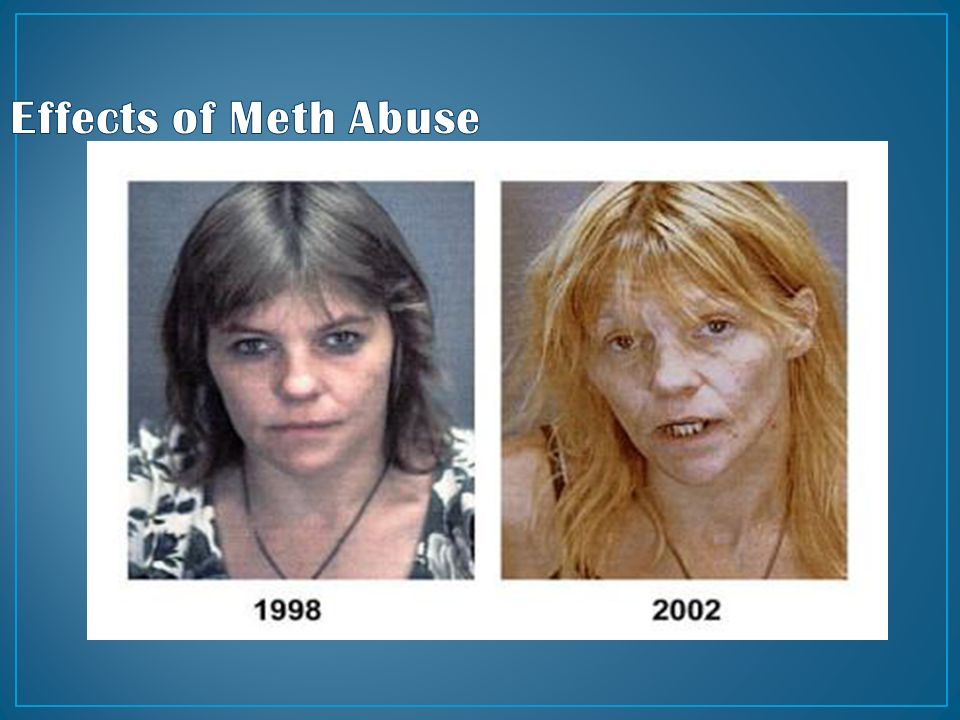 meth abuse About meth what is meth methamphetamine, or meth more information on the medical impact of meth is available on the national institute of drug abuse website.