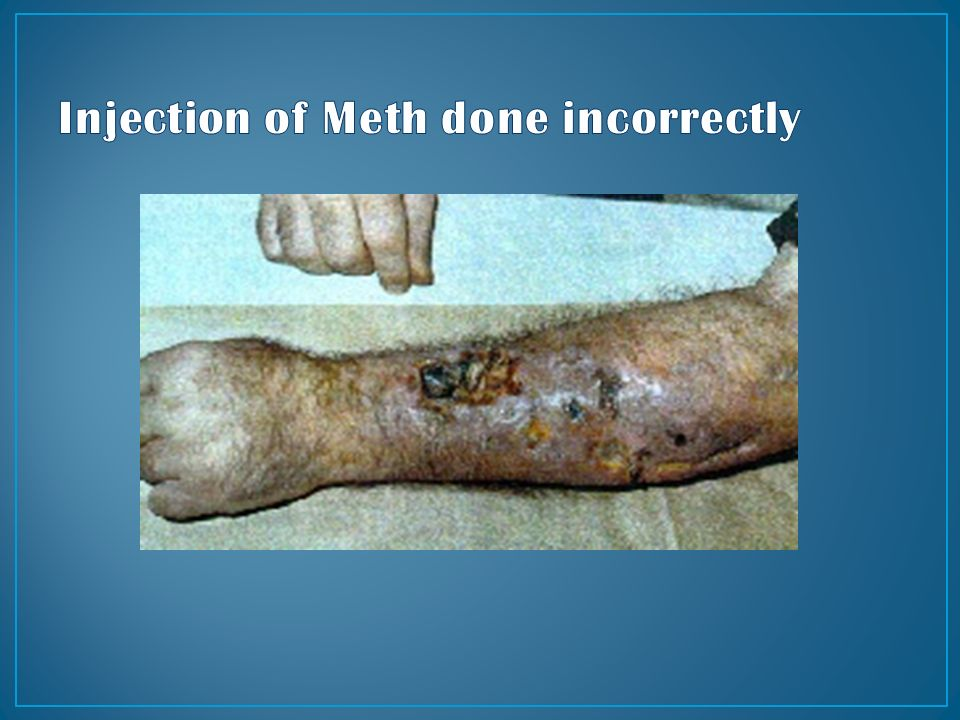 injecting meth for pinterest - photo #43