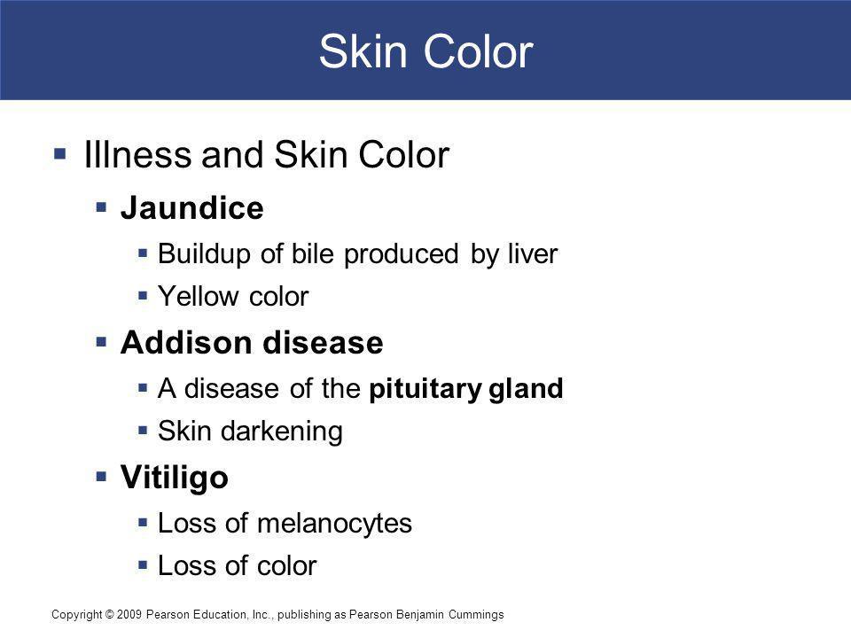 Skin Color Illness and Skin Color Jaundice Addison disease Vitiligo