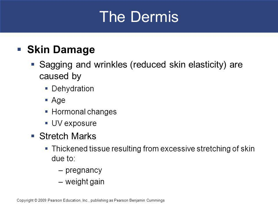 The Dermis Skin Damage. Sagging and wrinkles (reduced skin elasticity) are caused by. Dehydration.