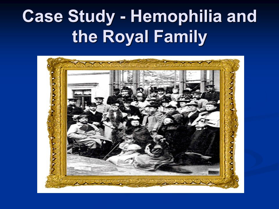 Case Study - Hemophilia and the Royal Family