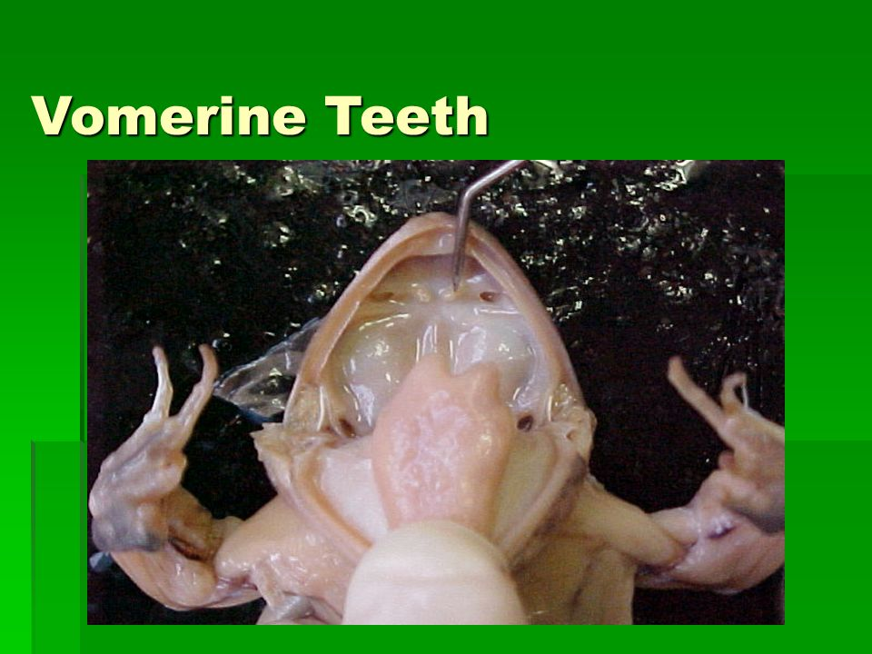 Vomerine Teeth