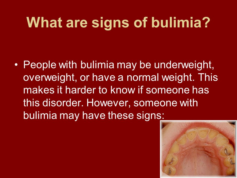 What are signs of bulimia