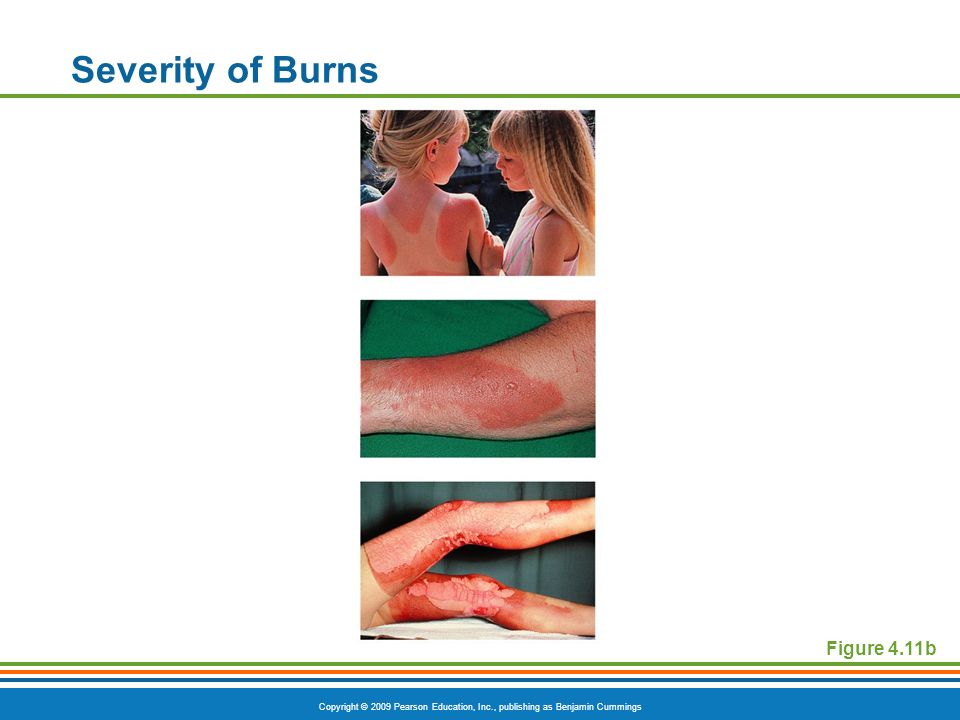 Severity of Burns Figure 4.11b