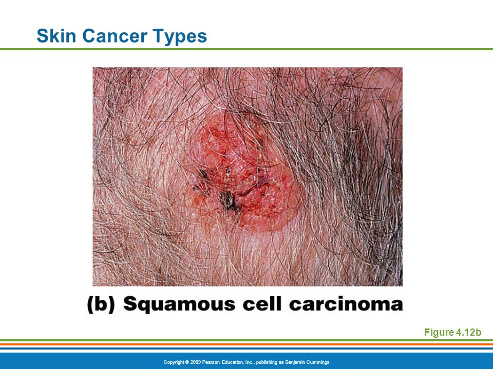 Skin Cancer Types Figure 4.12b