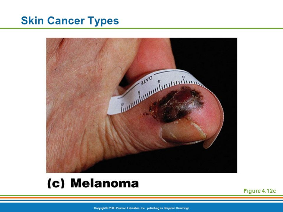 Skin Cancer Types Figure 4.12c