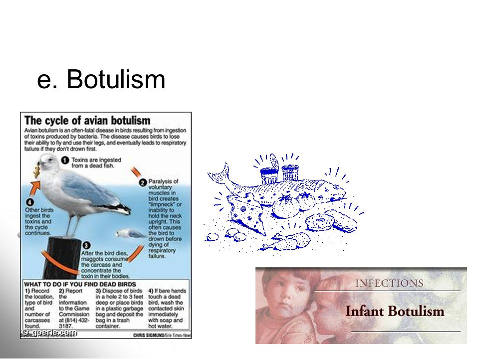 e. Botulism e. Botulism –exotoxins (food borne, infant, avian, wound)
