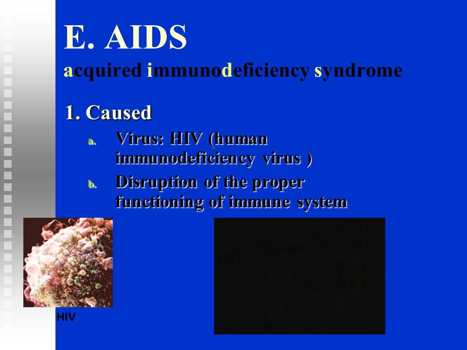 E. AIDS acquired immunodeficiency syndrome