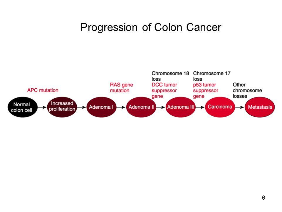 Progression of Colon Cancer