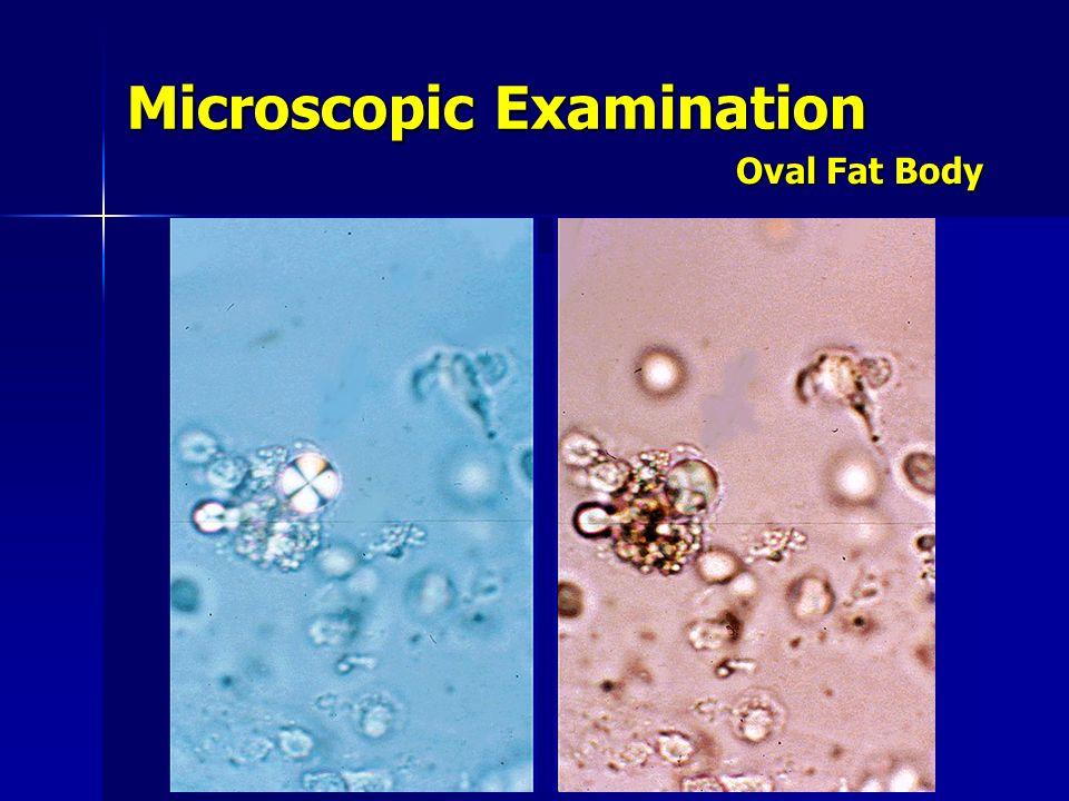 urinalysis francisco g. la rosa, md course: idpt ppt video ... oval fat bodies diagram