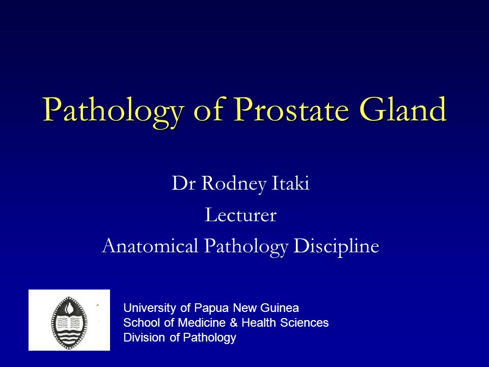 Pathology of Prostate Gland