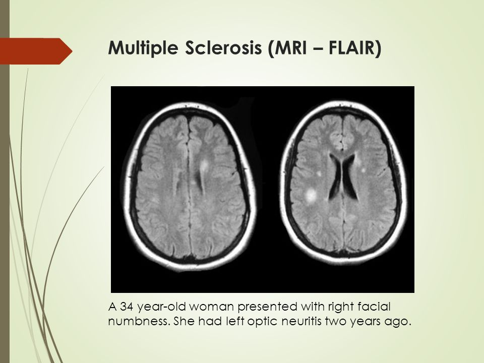 an examination of multiple sclerosis What is endoscopy and why is it performed endoscopy allows physicians to peer through the body's passageways endoscopy is the examination and inspection of the interior of body organs, joints or cavities through an endoscope.