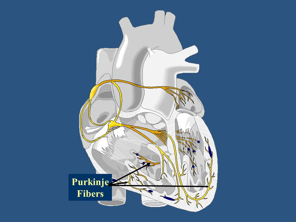 Cardiac monitoring ppt download - Pure kindje ...