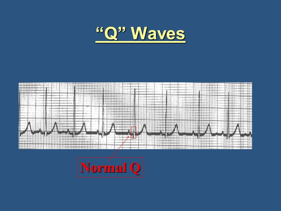 Q Wave Indication
