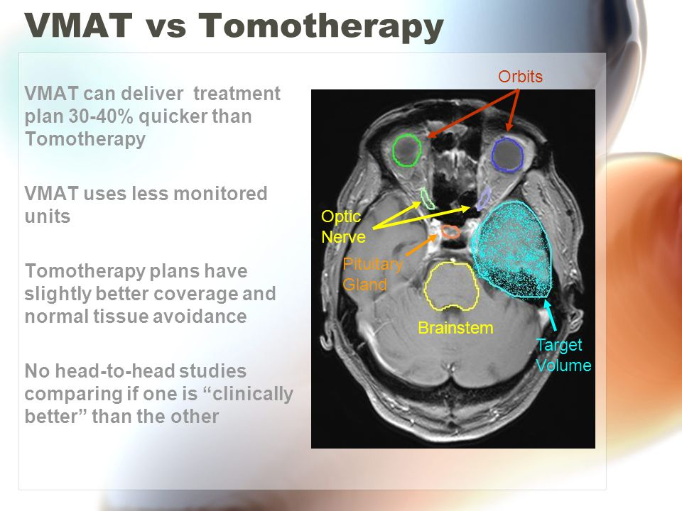 VMAT vs Tomotherapy VMAT can deliver treatment plan 30-40% quicker than Tomotherapy. VMAT uses less monitored units.