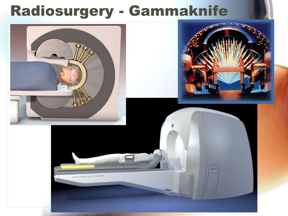 Radiosurgery - Gammaknife