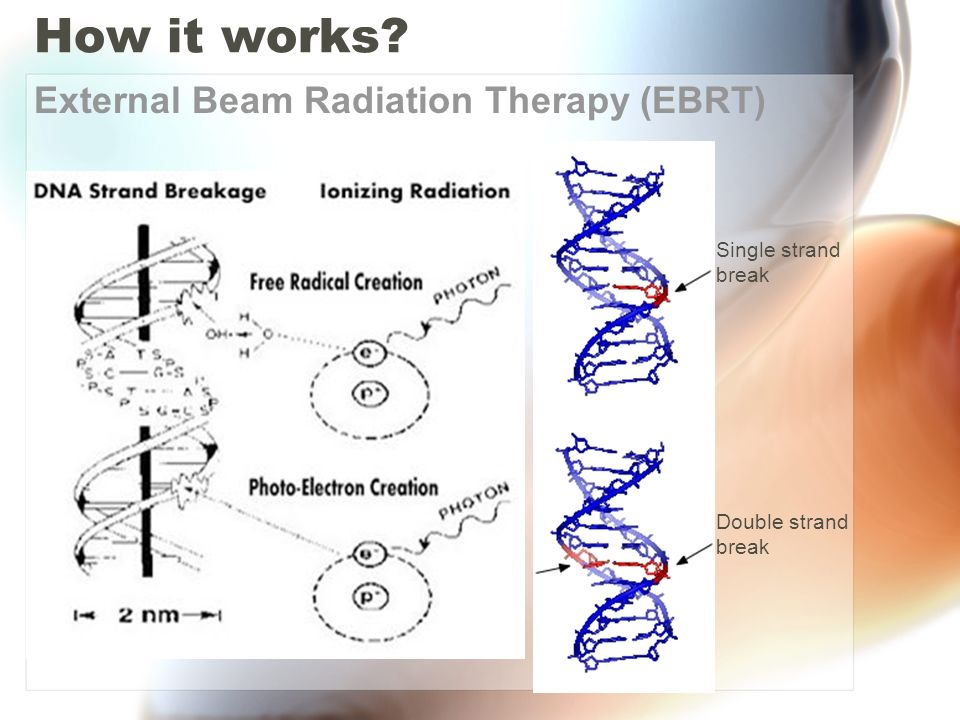 How it works External Beam Radiation Therapy (EBRT)