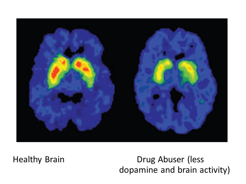 Healthy Brain Drug Abuser (less dopamine and brain activity)