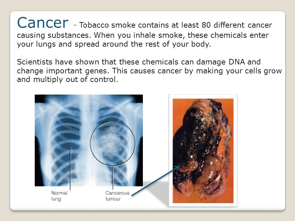 Cancer - Tobacco smoke contains at least 80 different cancer causing substances. When you inhale smoke, these chemicals enter your lungs and spread around the rest of your body.