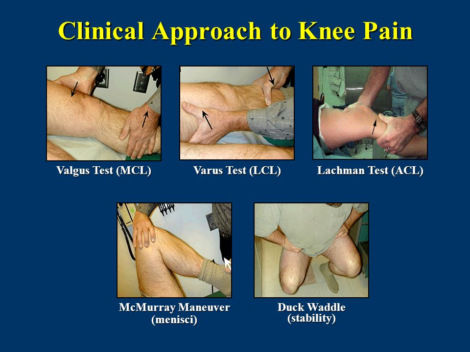 Clinical Approach to Knee Pain