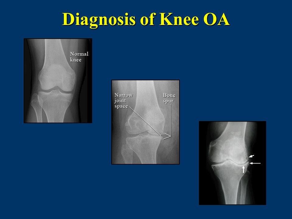 Diagnosis of Knee OA X-ray on right: Top arrow – subcondral cyst